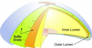 IDEAL Structured Breast IMPLANT Baffles