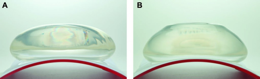an analysis of the drawbacks of silicone brest implants The largest ever study of silicone breast implants has found the devices are generally safe but associated with a slightly higher risk of a few rare diseases, a controversial conclusion that.